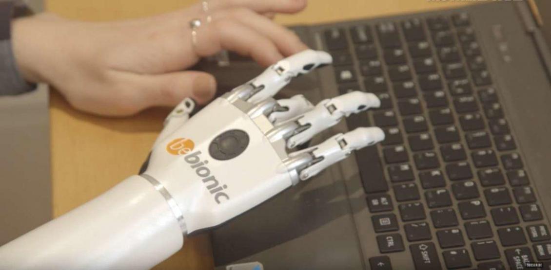 protesi robotiche
